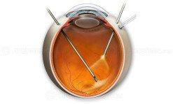 Epiretinal membrane peel surgery image