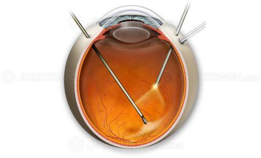 Epiretinal membrane peel surgery image #suvr0004