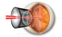 Pan-retinal photocoagulation PRP for proliferative diabetic retinopathy