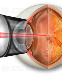 Pan-retinal photocoagulation PRP for proliferative diabetic retinopathy