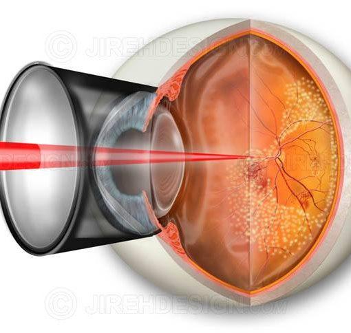 Pan-retinal photocoagulation for PDR #suvr0005