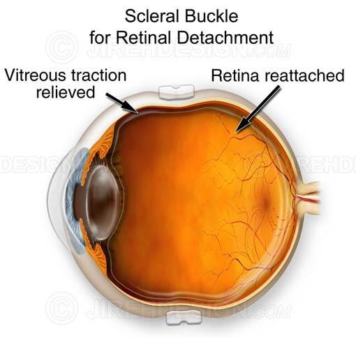 Scleral buckle illustration #suvr0008