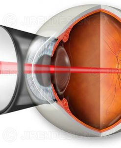 Argon laser photocoaculation eye surgery for macular degeneration