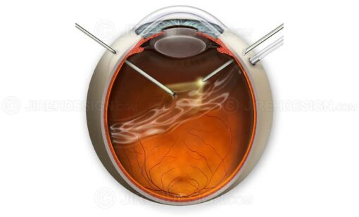 Pars plana vitrectomy illustration #suvr0021