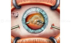 External view of a pars plana vitrectomy eye surgery