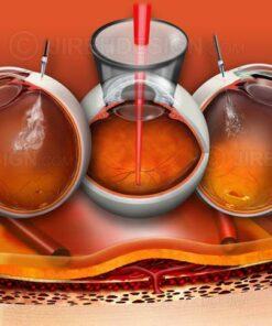 Various eye injections for macular degeneration