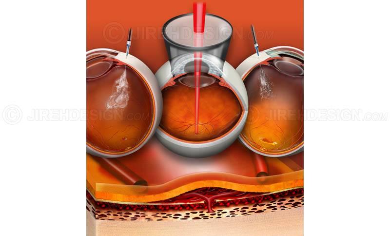Various eye injections for macular degeneration #suvr0026