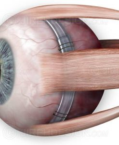 Scleral buckle around eyeball for retinal detachment treatments