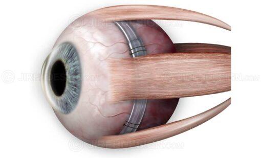 Scleral buckle around eyeball for retinal detachment #suvr0032