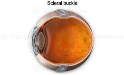 Illustration of scleral buckle around eyeball