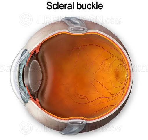 Illustration of scleral buckle around eyeball #suvr0033