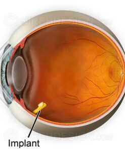 Drug delivery method retina and vitreous implant