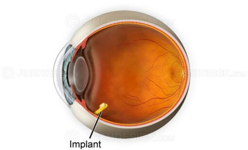 Drug delivery method retina and vitreous implant #suvr0038