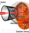 Laser for diabetic eye disease