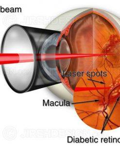 Laser for diabetic eye disease