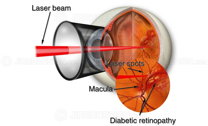 Argon laser photocoagulation for diabetic retinopathy #suvr0040