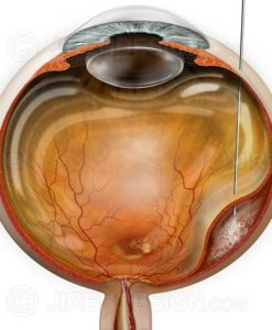 Surgical subretinal injection for treatment of wet macular degeneration.