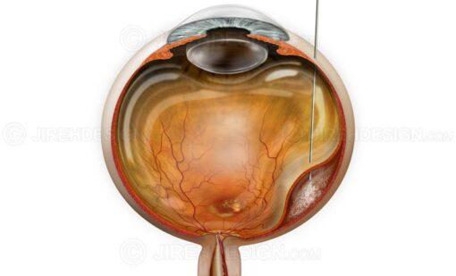 Surgical subretinal injection for treatment of wet macular degeneration #suvr0049