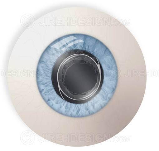 Open capsule postop YAG laser capsulotomy for posterior capsular haze #suy0003