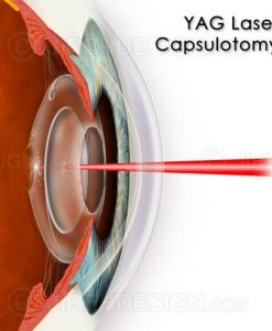 YAG laser capsulotomy for posterior capsular haze after cataract surgery