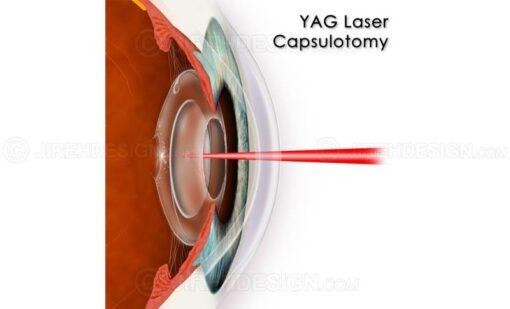 YAG laser capsulotomy for posterior capsular haze after cataract surgery #suy0005