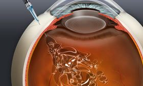 Avastin treatment for macular degeneration