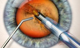 Cataract surgery with IOL implant animation