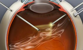 Pars plana vitrectomy animation