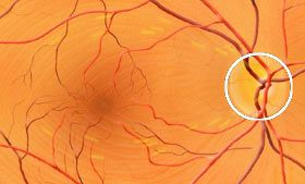 How vision works in the human eye | an animation