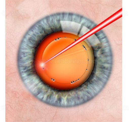 Laser cataract surgery capsulorhexis #SUCA0070