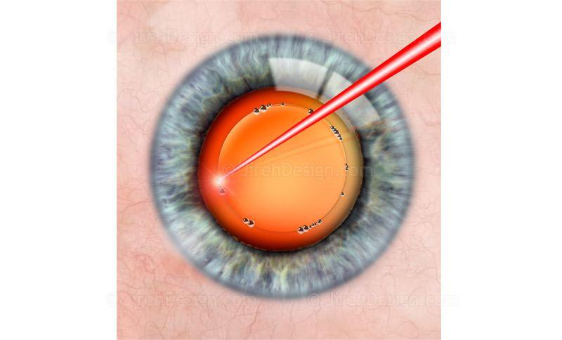 Laser cataract surgery capsulorhexis
