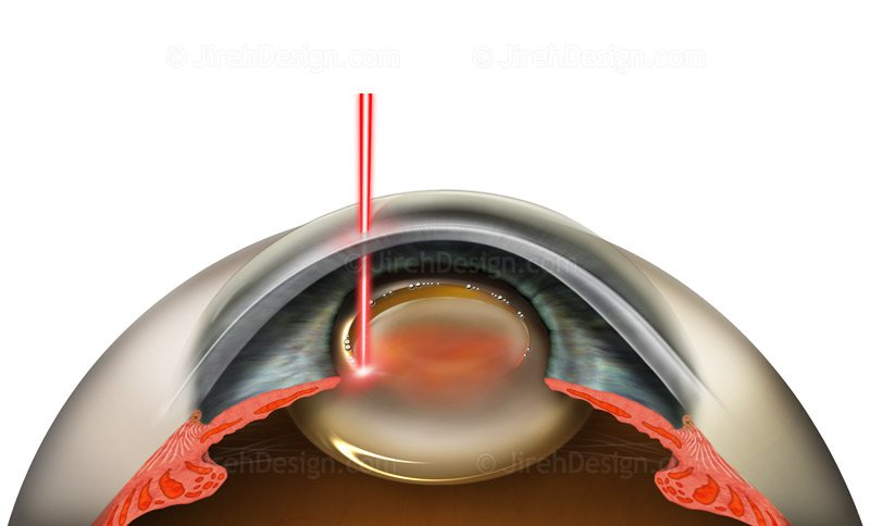 Femtosecond laser capsulorhexis