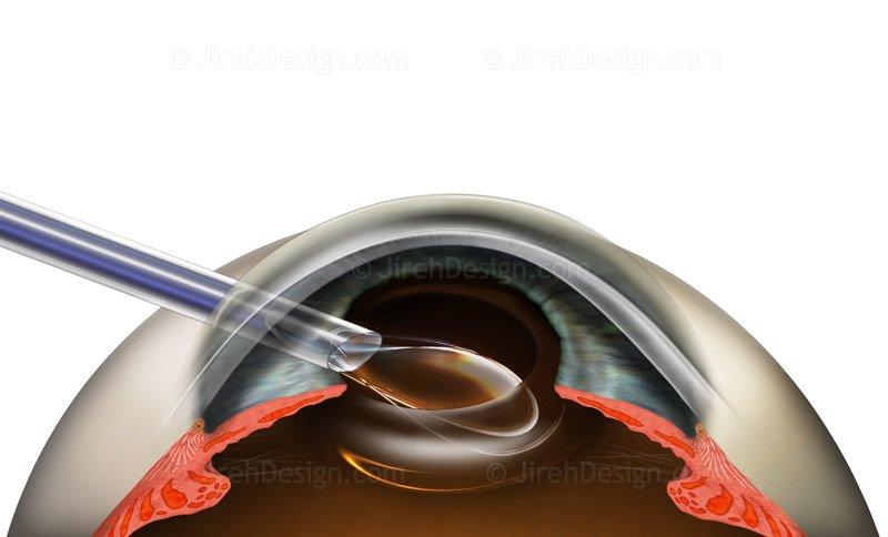Premium IOL implantation