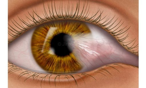 Pterygium of the conjunctiva