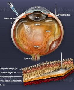 Intraocular drug injection therapies