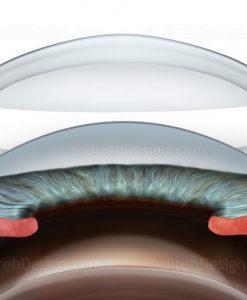 Deep Anterior Lamellar Keratoplasty DALK
