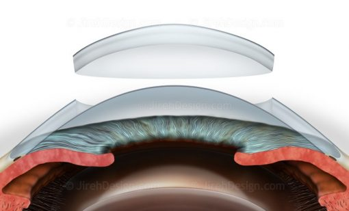 Deep Anterior Lamellar Keratoplasty DALK #SURDK0004