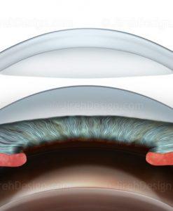 Deep anterior lamellar keratoplasty (DALK)