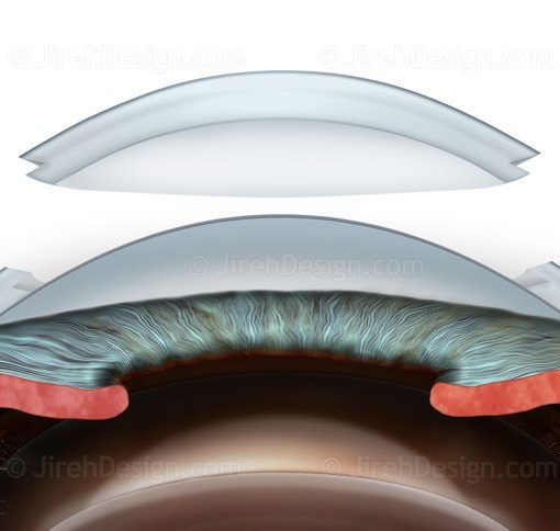 Deep anterior lamellar keratoplasty (DALK) #SURDK0006