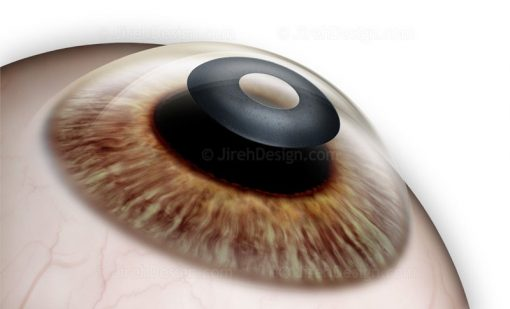 Kamra Corneal Inlay Implantation for Post-LASIK Patients