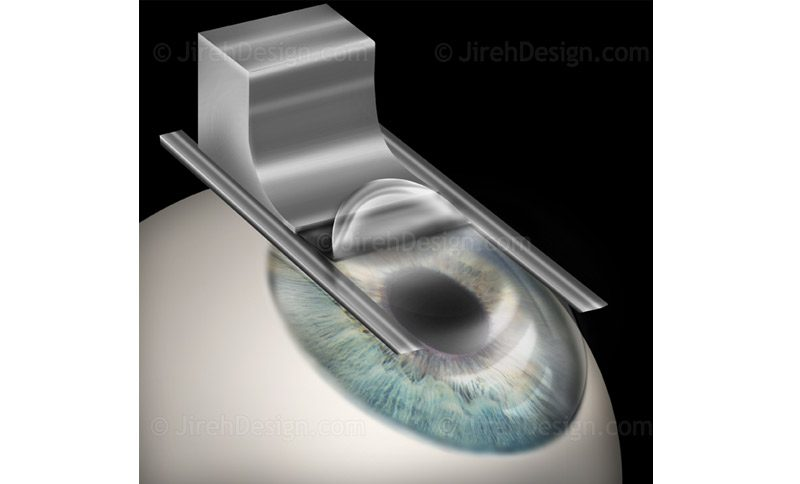 Corneal flap creation with microkeratome