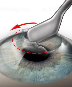 Epithelial scraping for photorefractive keratectomy