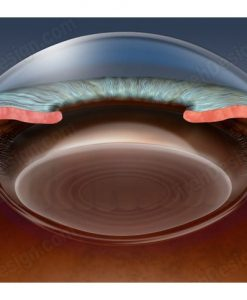 Anterior chamber of an eye in cross-section - AN0012