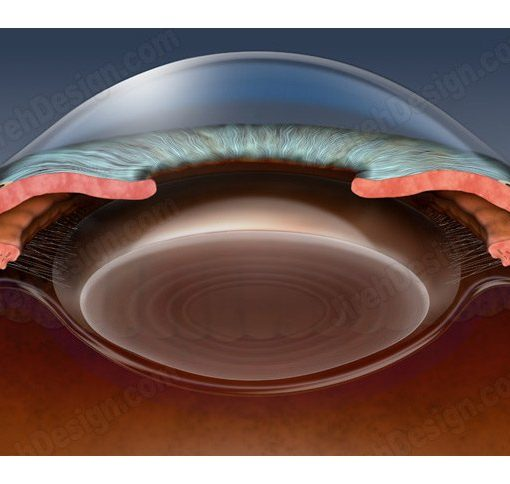 Anterior chamber of an eye in cross-section – AN0012