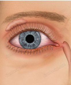 Tear drainage system, or Lacrimal system