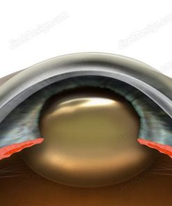 Cross-section anatomical diagram of a cataract developing in an eye.
