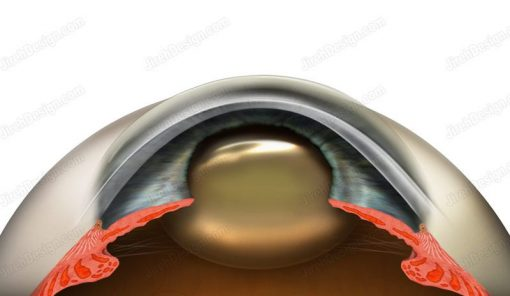 Cross-section anatomical diagram of a cataract developing in an eye