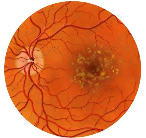 Anatomical illustration of macular drusen in dry, non-exudative macular degeneration.