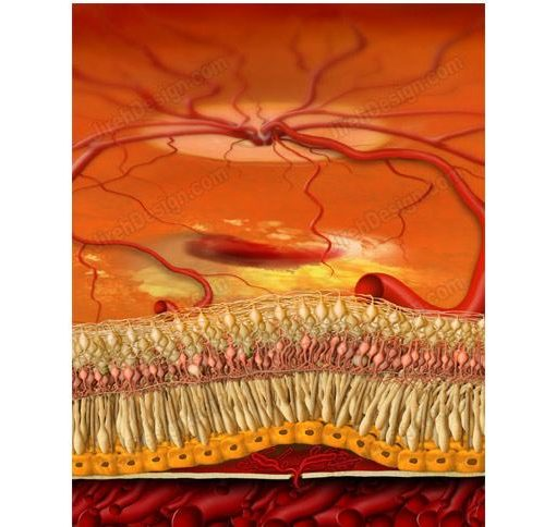 Cross-section anatomical painting of wet macular degeneration with retinal hemorrhage and choroidal neovascularization