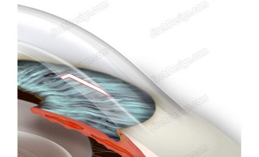 Tunneling clear corneal incision for small incision cataract surgery. A surgical illustration.